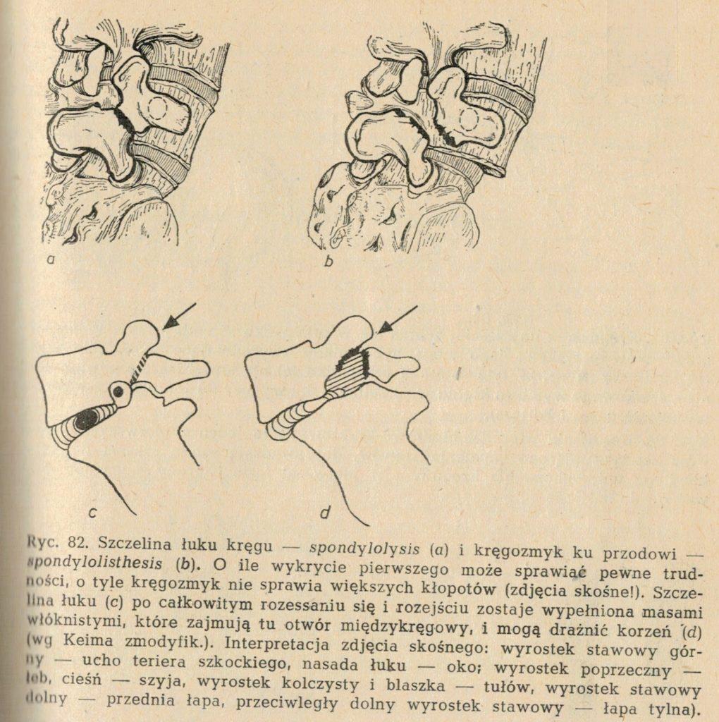Obraz 10. Po lewej zdrowy kręgosłup. Po prawej widoczny kręgozmyk.